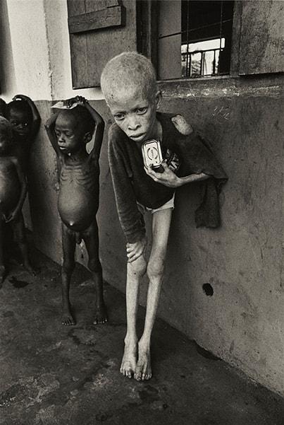 Don McCullin, Albino Boy, Bafra, 1969